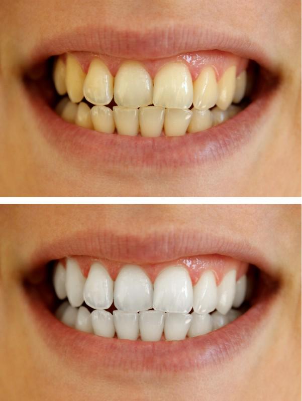blanqueamiento dental interno