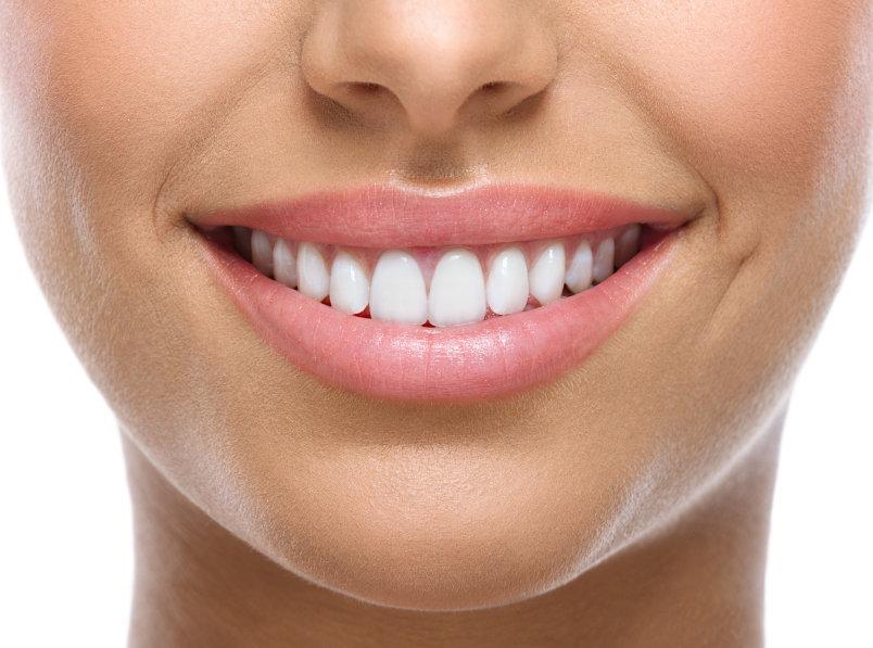 ¿En qué consiste la ortodoncia invisible?