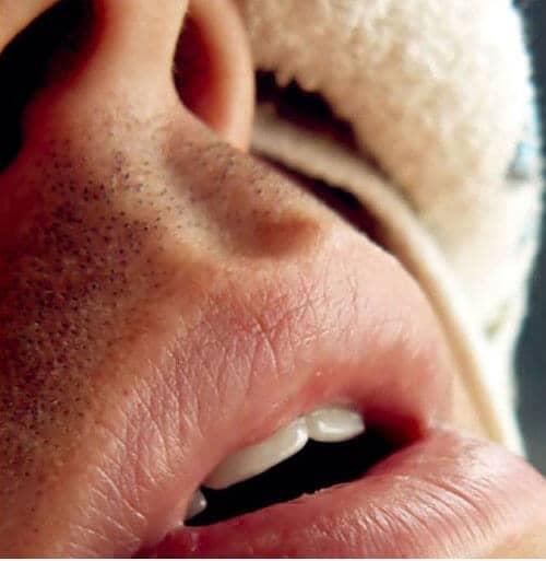 Clínica Dental Miguel Ángel - Apnea del sueño