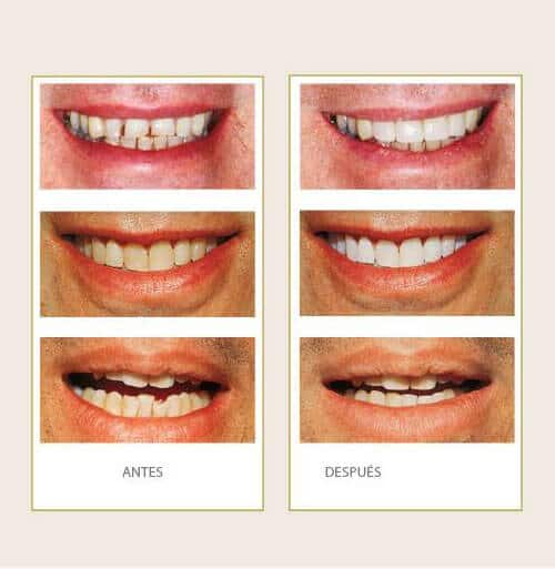 Clínica Dental Miguel Ángel - Estética dental