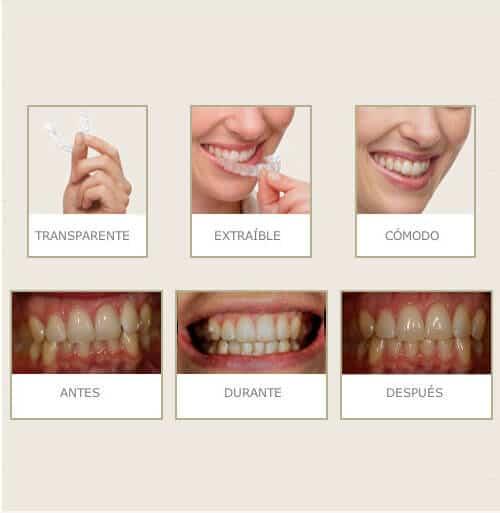Ortodoncia invisible de la Clínica Dental Miguel Ángel - Invisible