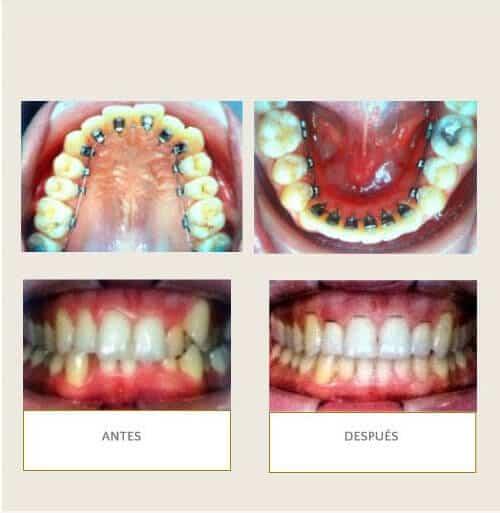 Clínica Dental Miguel Ángel - Lingual