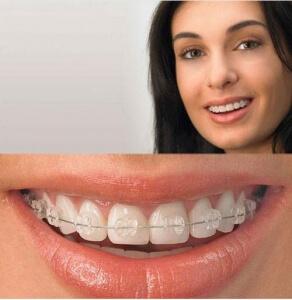 Ortodoncia Brackets. Clínica Dental Miguel Ángel - Ortodoncia palencia