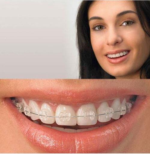 Clínica Dental Miguel Ángel - Ortodoncia palencia