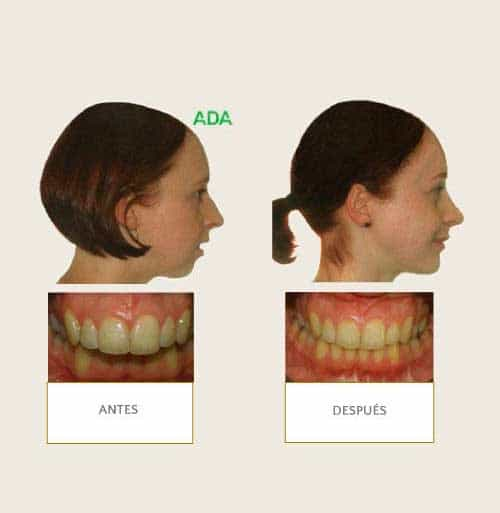Clínica Dental Miguel Ángel - Ortodoncia Quirurgica
