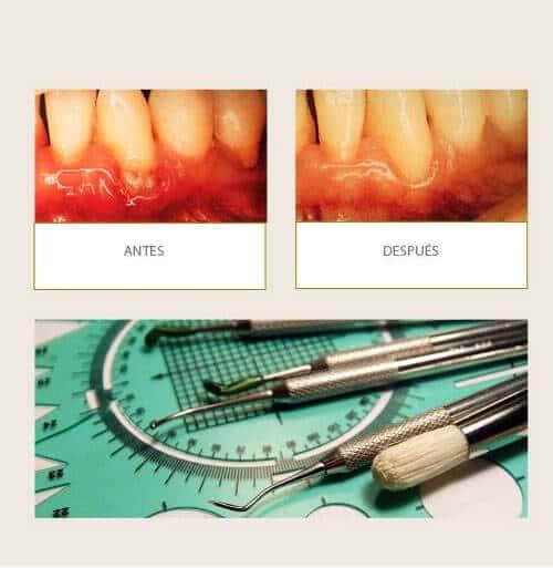 Clínica Dental Miguel Ángel - Periodoncia