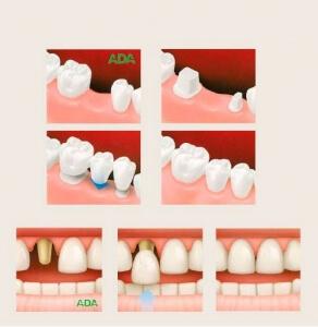 Prótesis dentales de la Clínica Dental Miguel Ángel - Prótesis