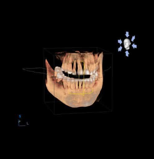 Clínica Dental Miguel Ángel - Control de calidad