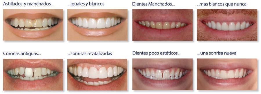 Clínica Dental Miguel Ángel - Dientes Carillas Palencia
