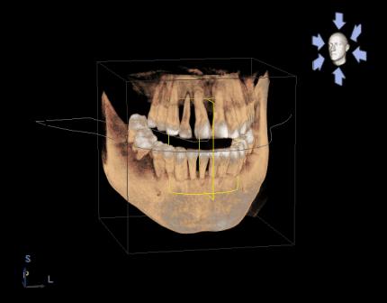 Clínica Dental Miguel Ángel - Radiología 3D