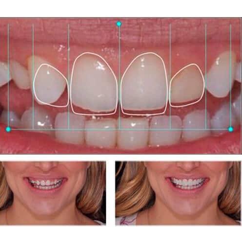 Clínica Dental Miguel Ángel - Diseño de sonrisa digital 3D