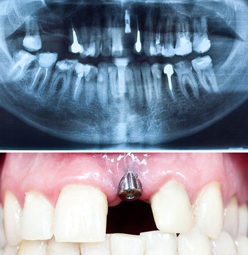 Clínica Miguel Ángel García Pérez - Implantes dentales en Palencia