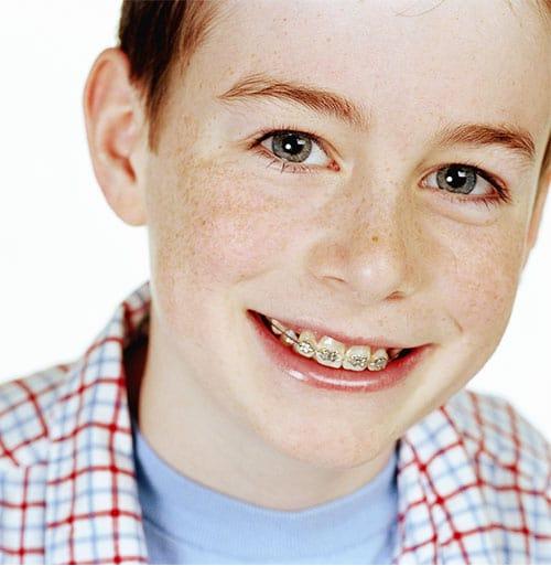 Ortodoncia infantil. Clínica Miguel Ángel García. Ortodoncia en Palencia