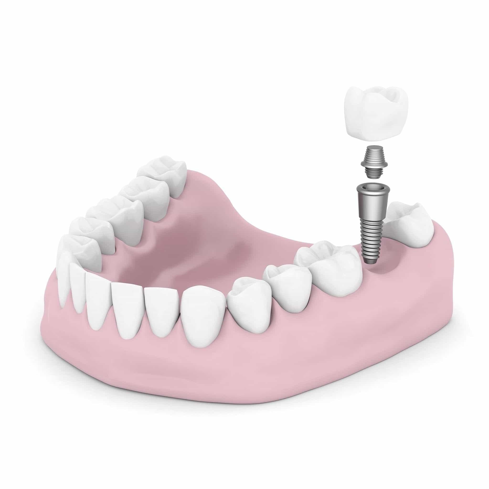 Consejos para después de una implantología dental