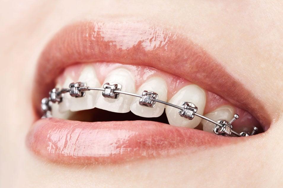 ortodoncia más cómoda