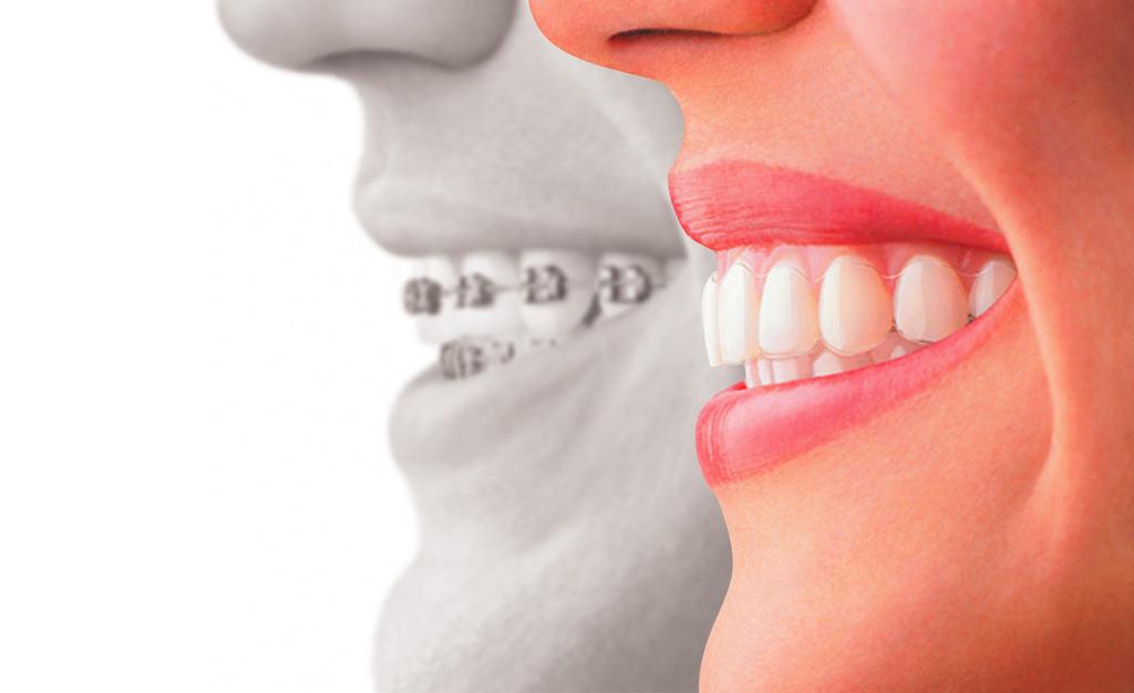 Beneficios ortodoncia invisalign