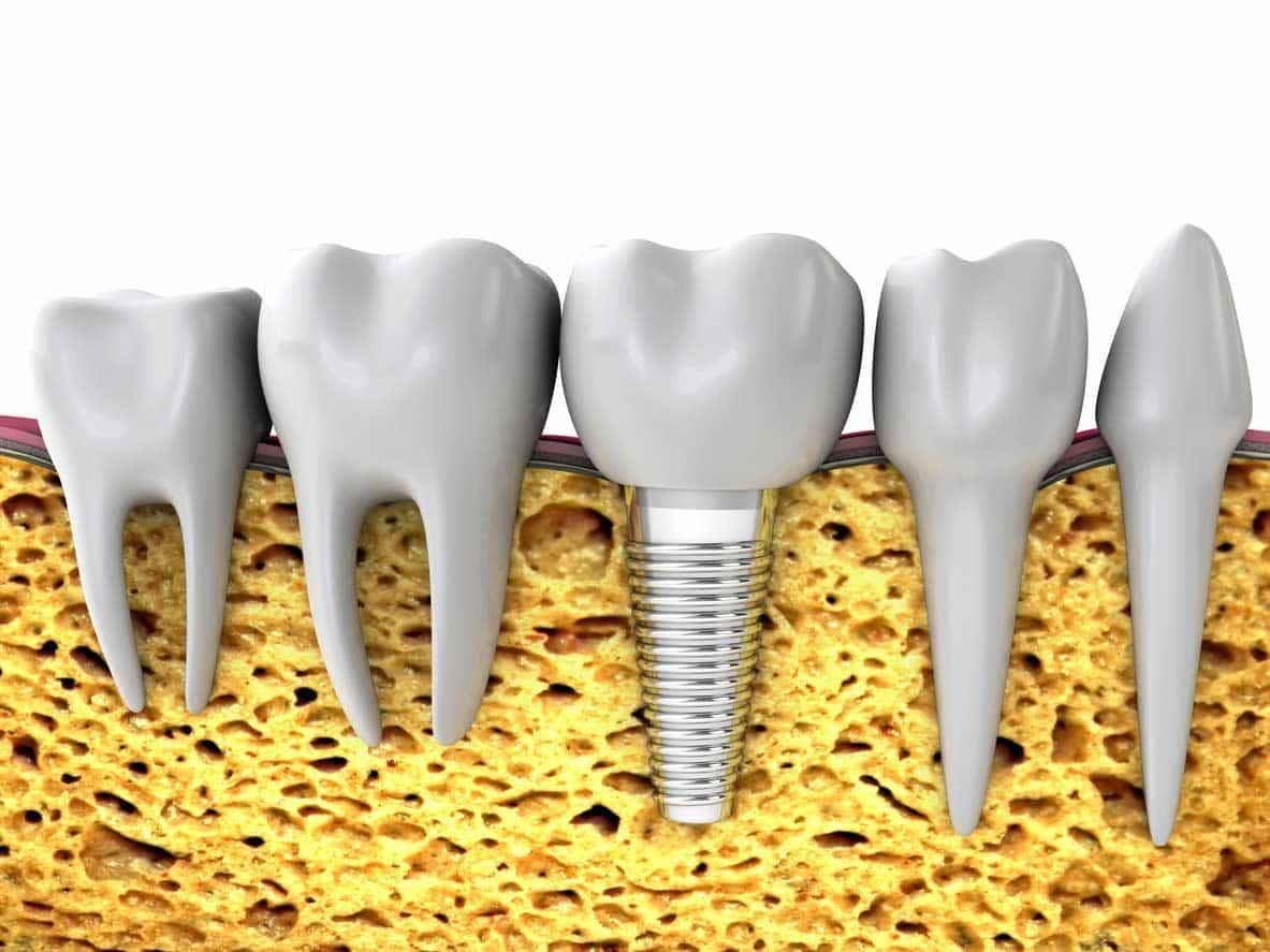 Opciones implantes dentales con poco hueso