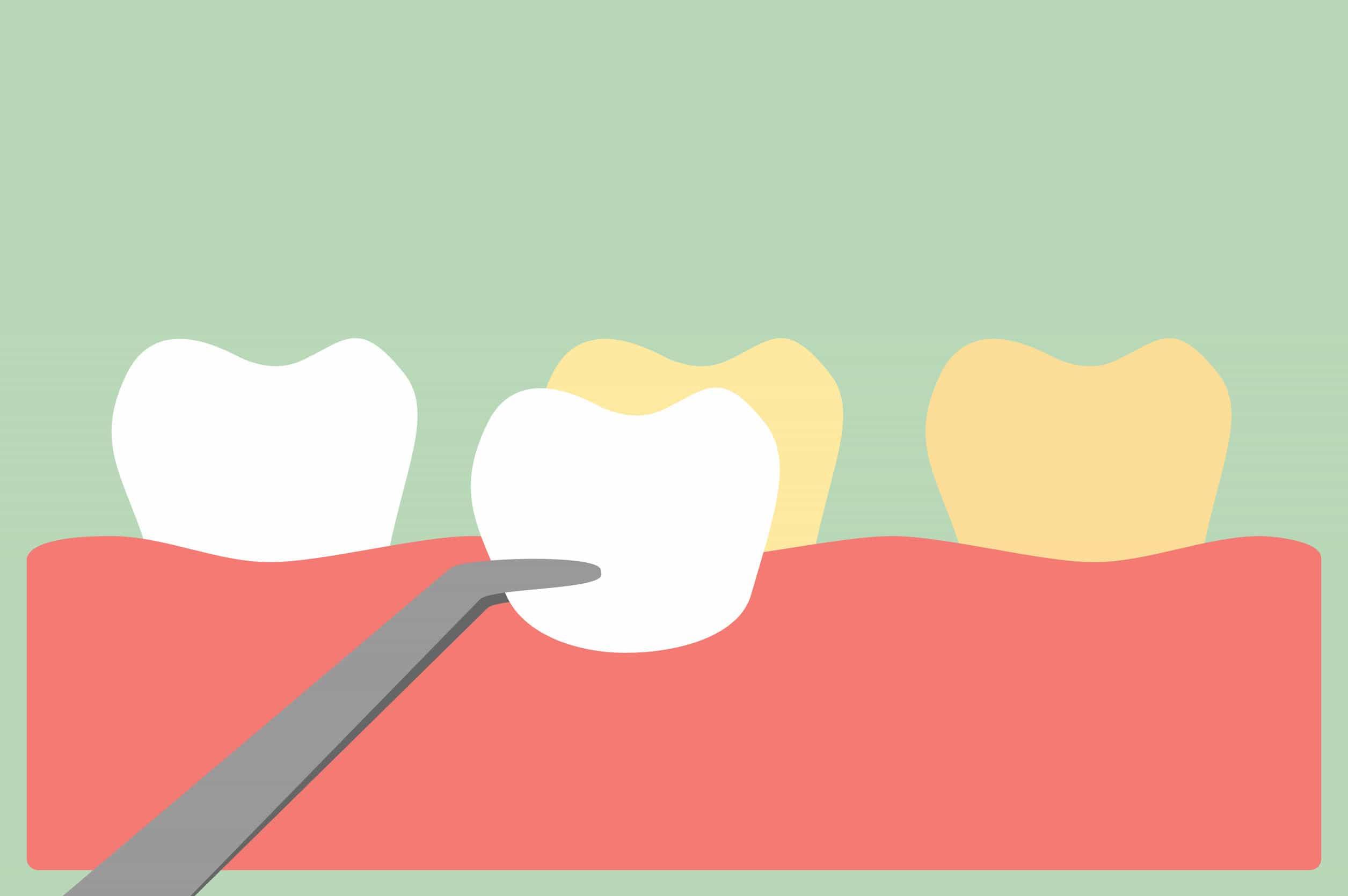 Colocación carillas dentales - Clínica Dental Miguel Ángel