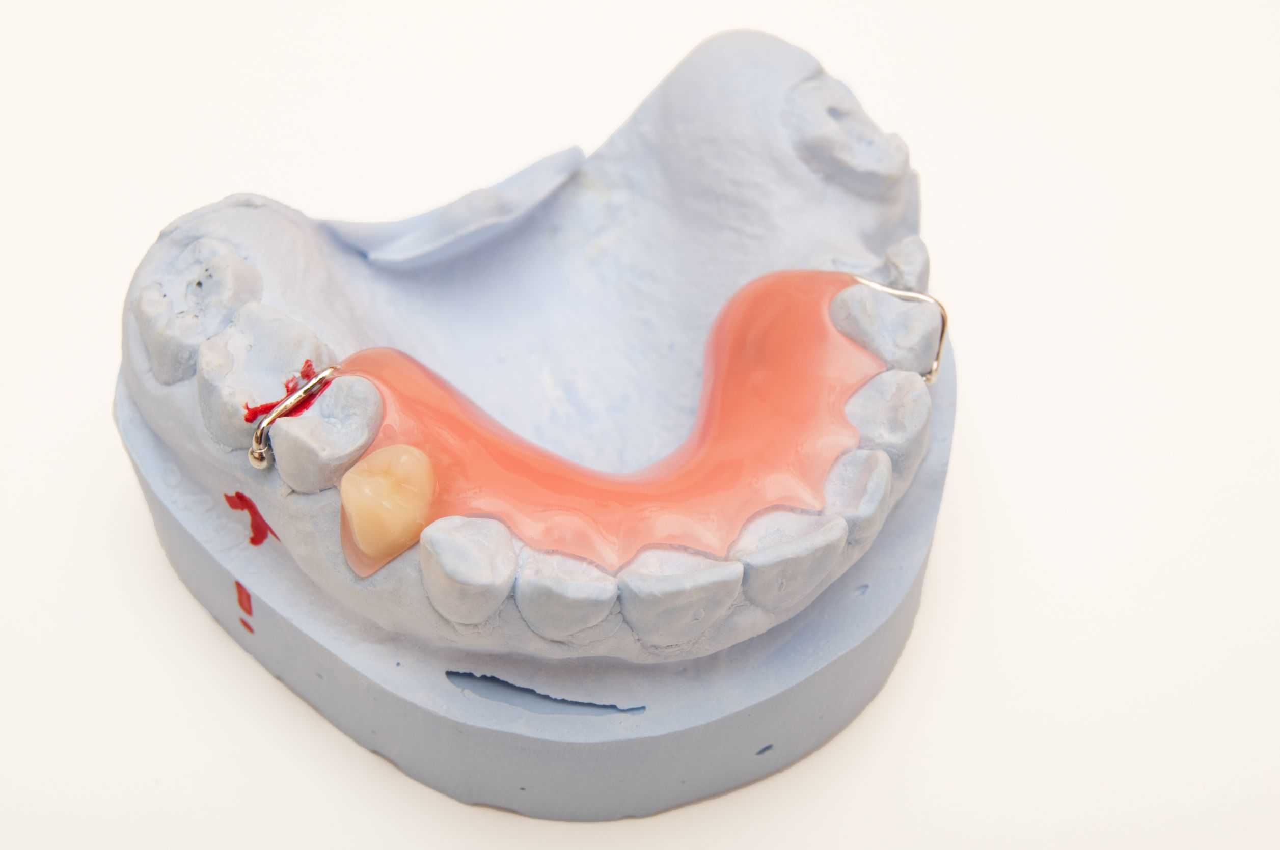 La necesidad de usar prótesis dentales