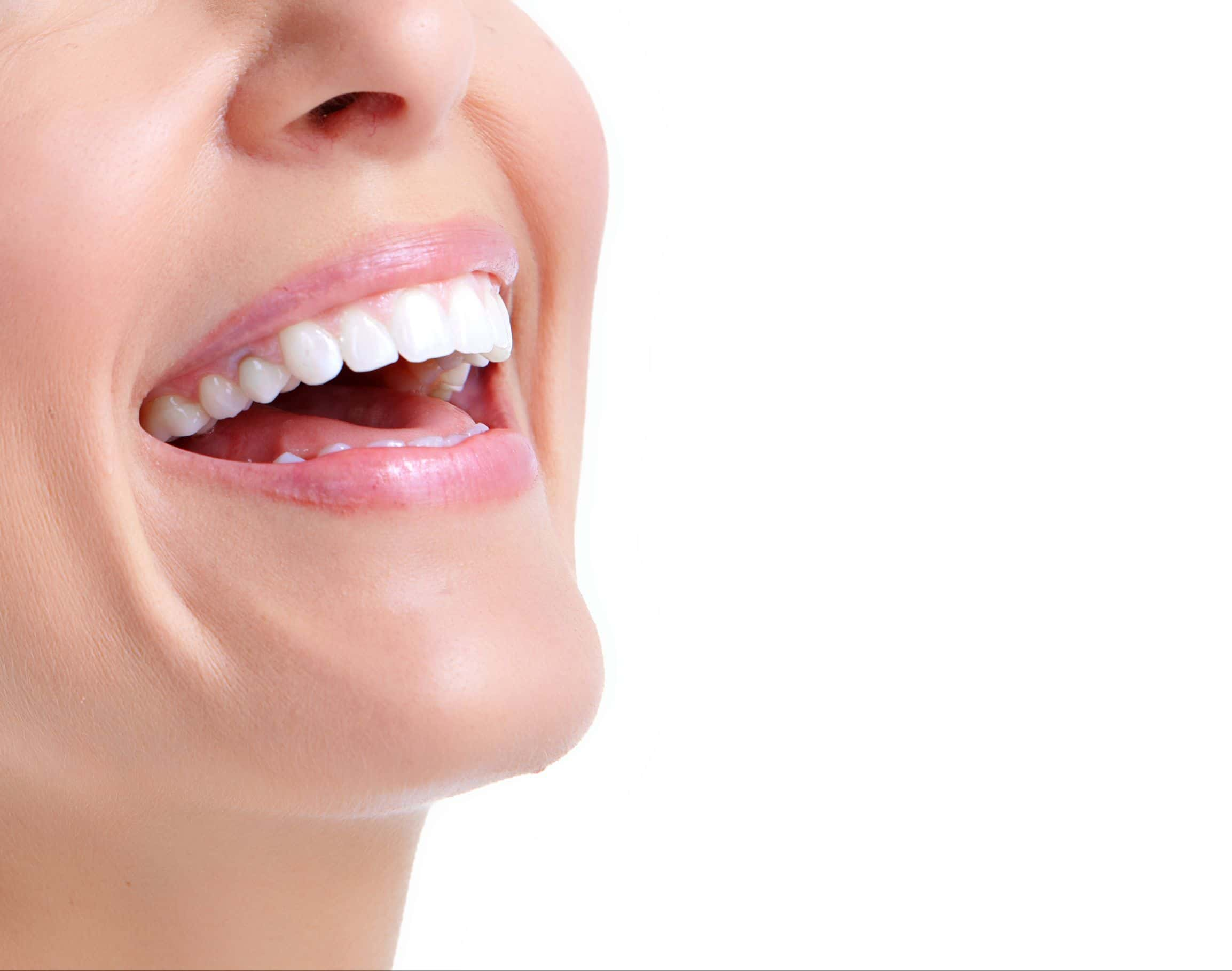 Blanqueamiento interno dientes no vitales