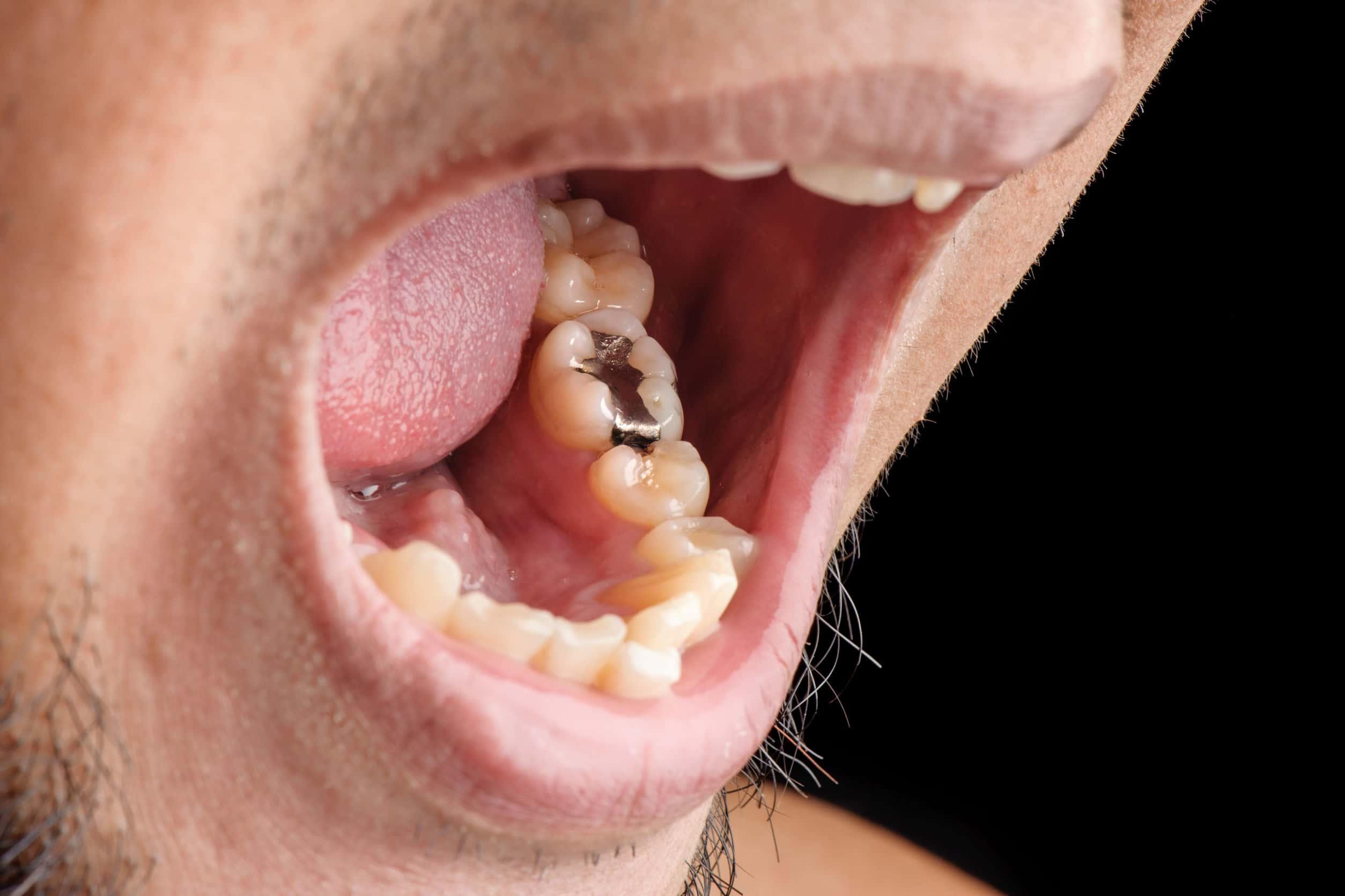 Funciones de un empaste dental