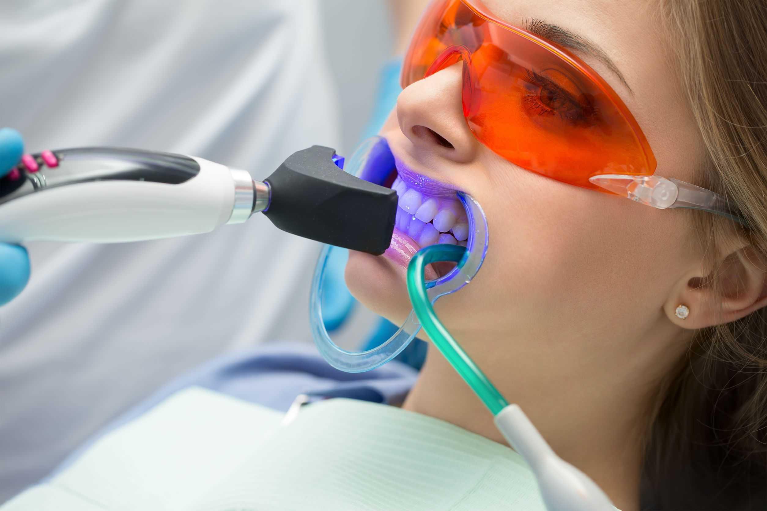 tratamiento blanquear dientes