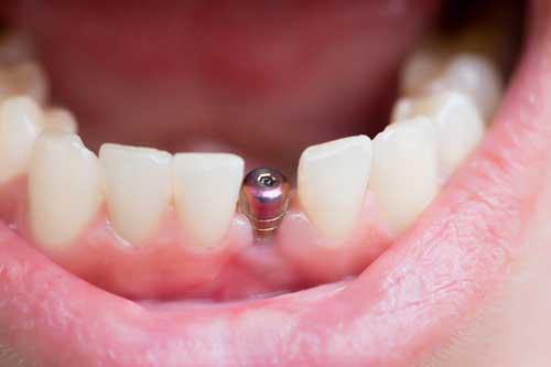 Implantes antes o después de ortodoncia