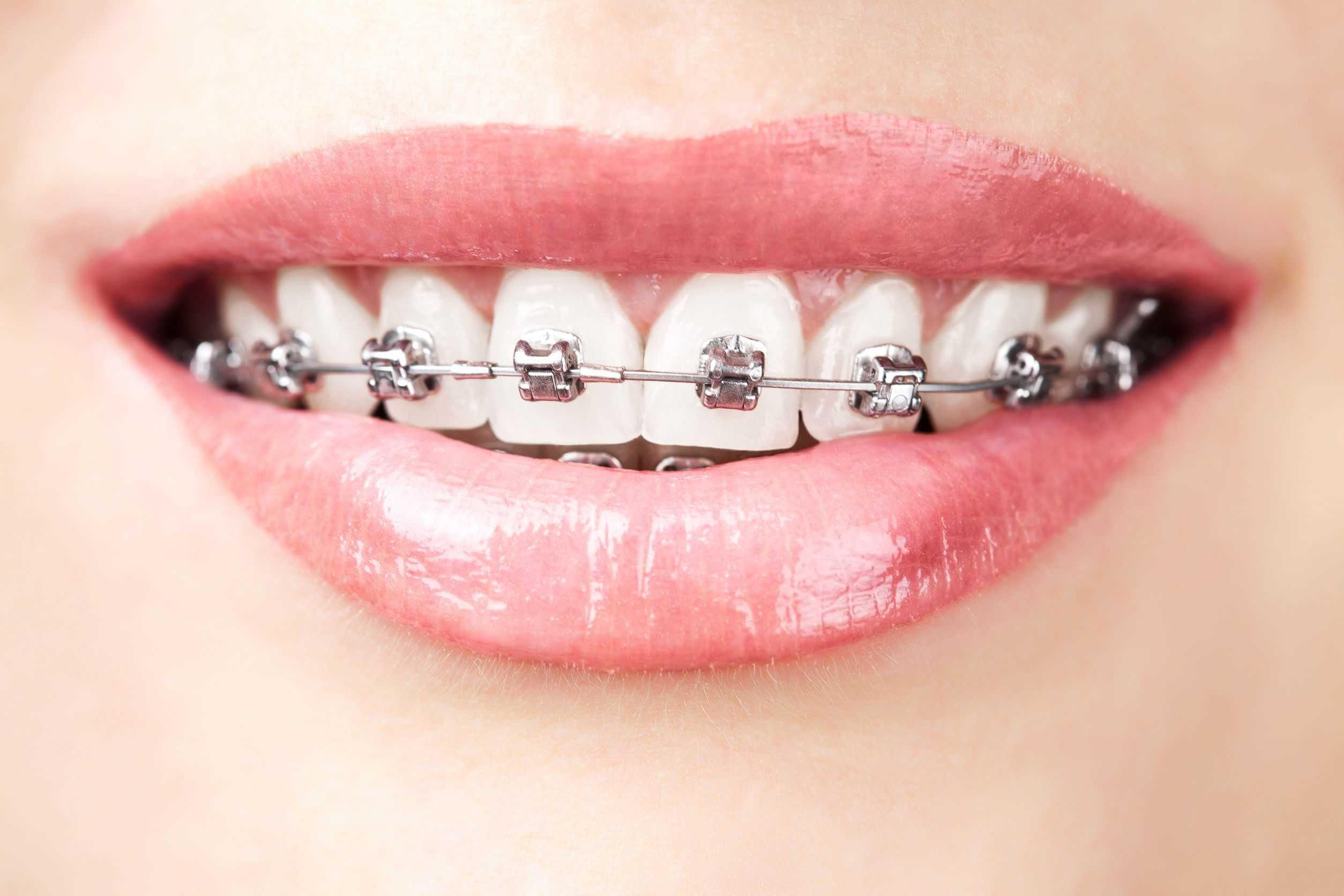boca con ortodoncia