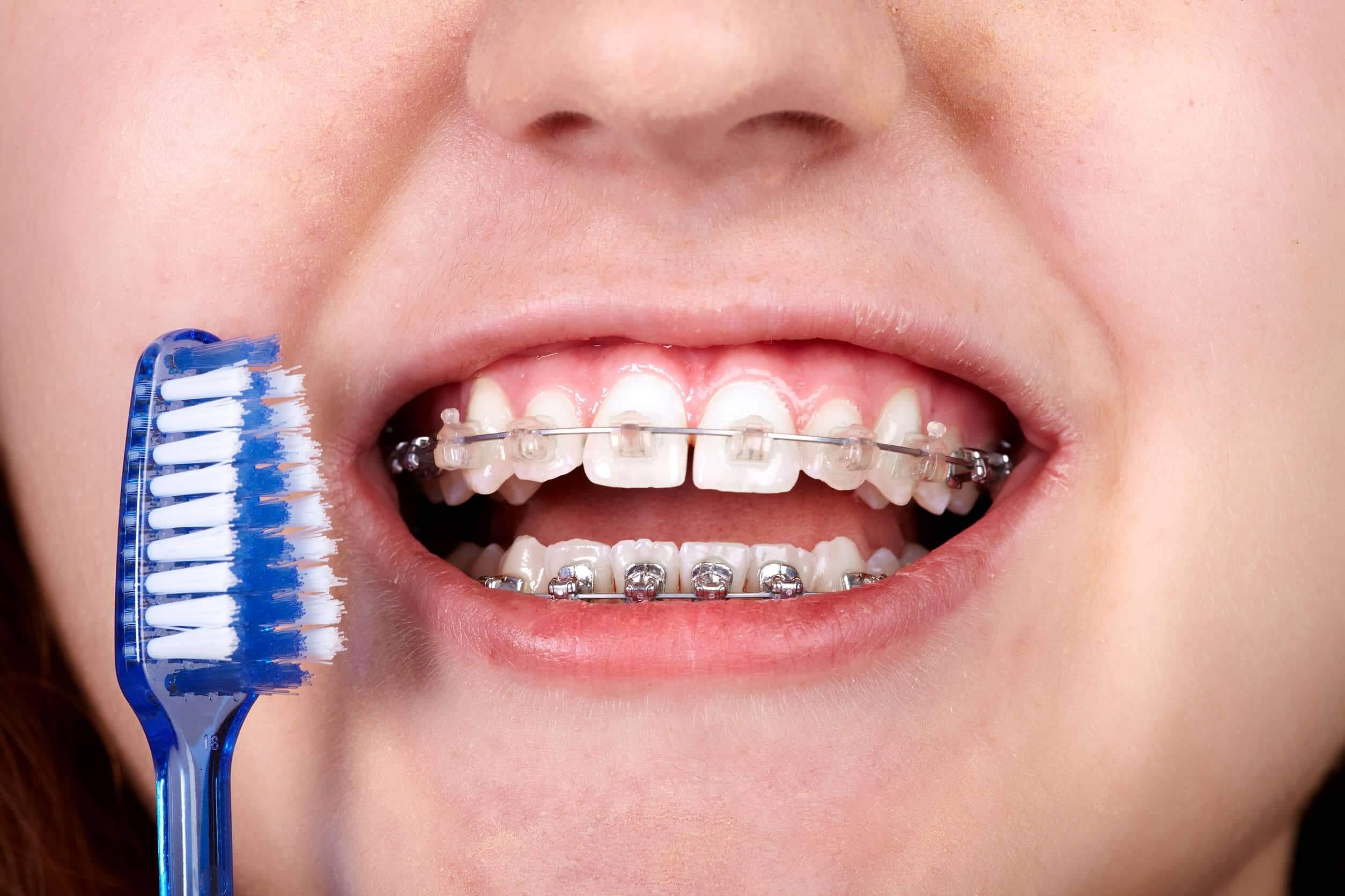correcta higiene bucal con tratamiento de ortodoncia,