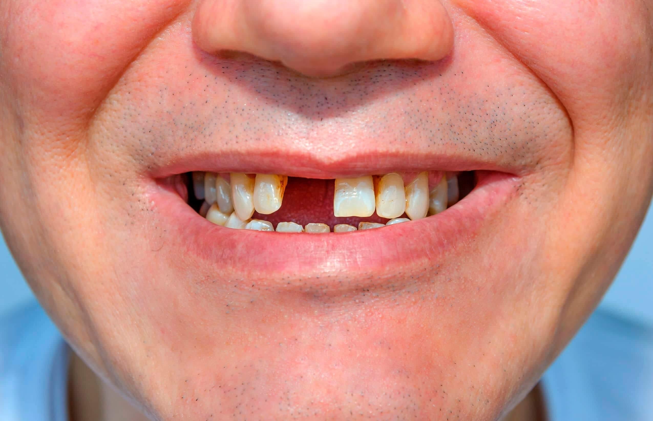 pérdida d dientes, sin un diente,
