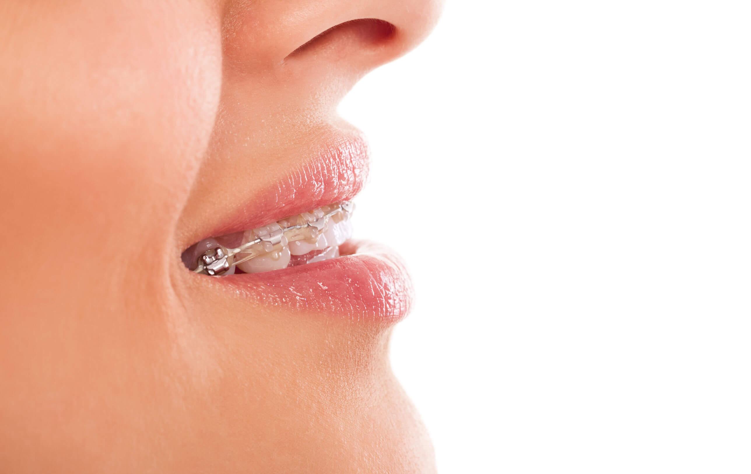 ortodoncia antes y después,