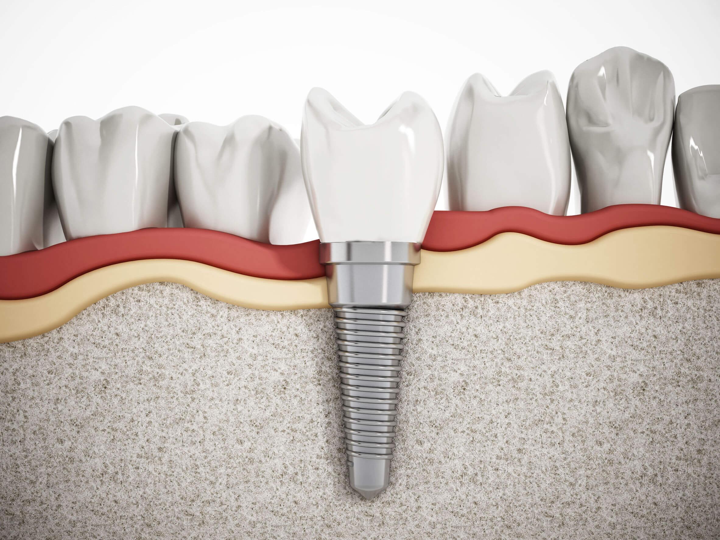 implantes dentales dibujo