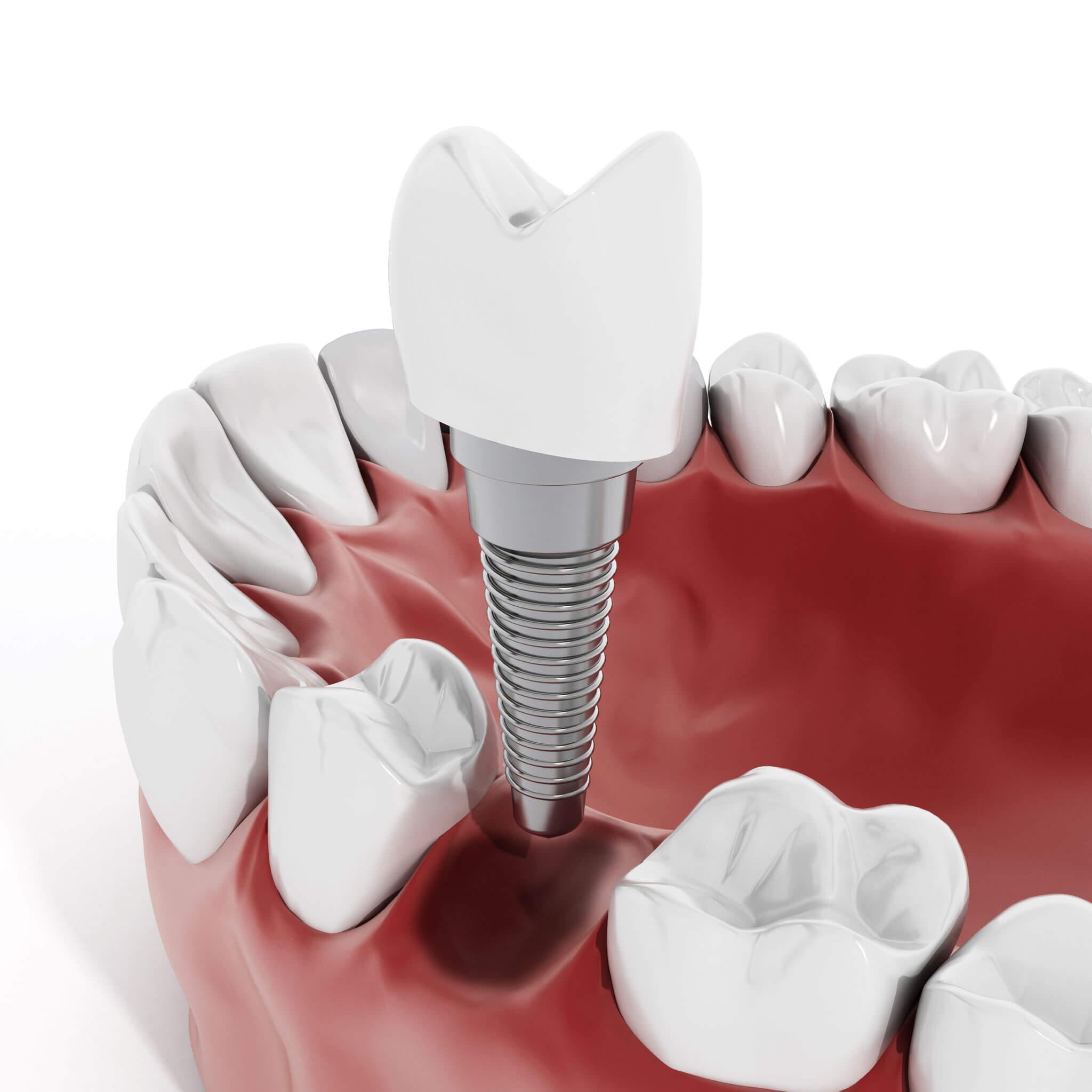 cuidados después de un implante dental,