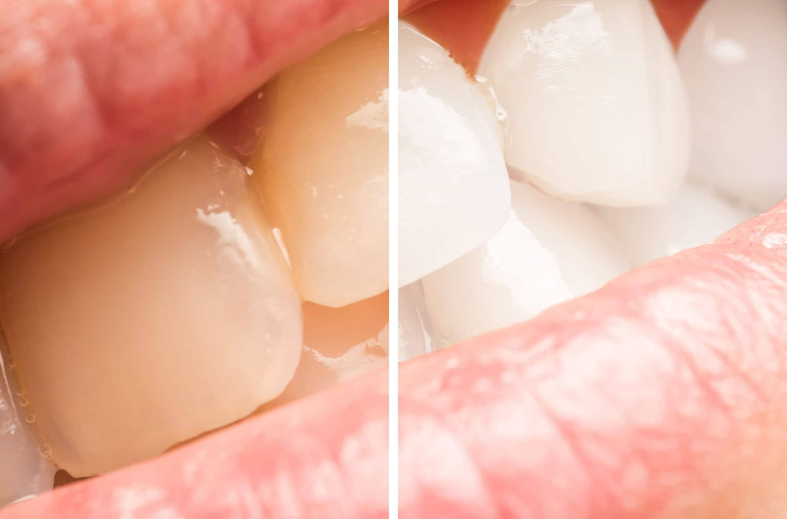 qué blanqueamiento dental es el más eficaz y duradero