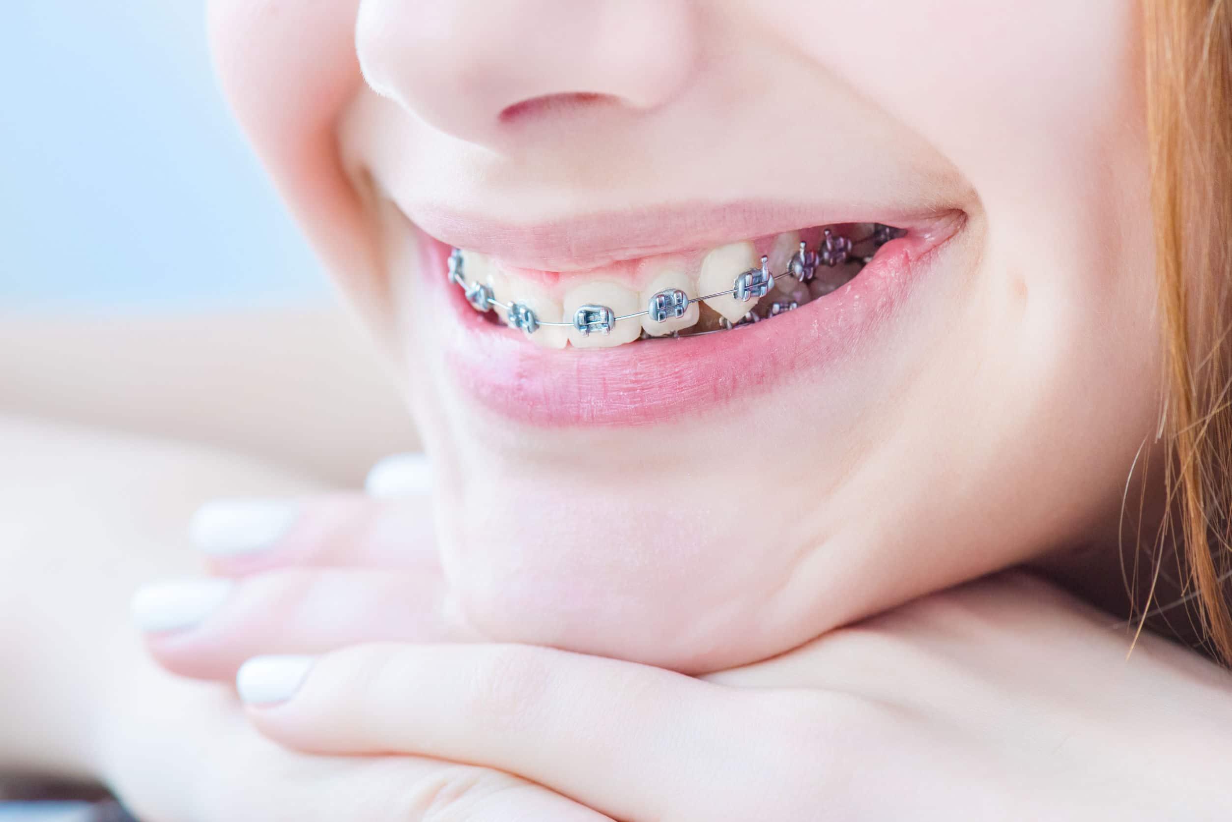 5 tipos de brackets en ortodoncia