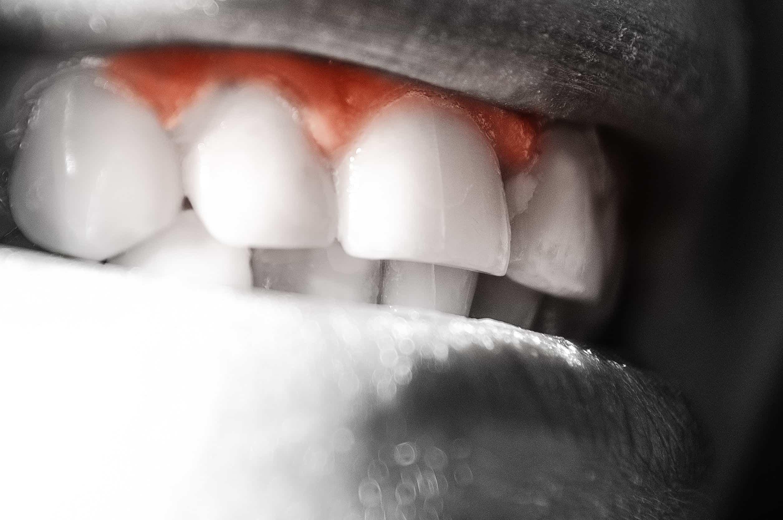 periodoncia, qué es