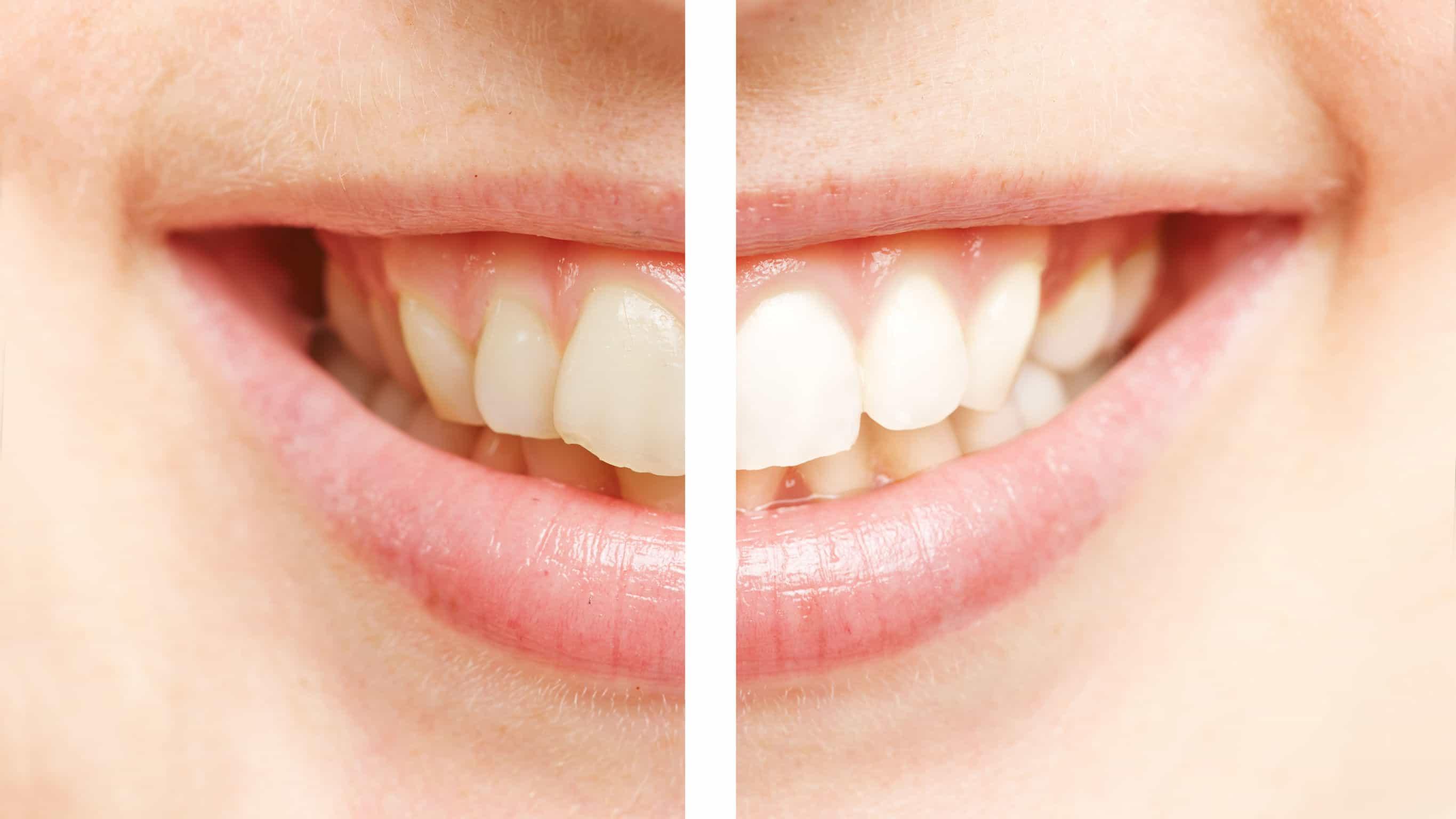 dientes amarillos: solución