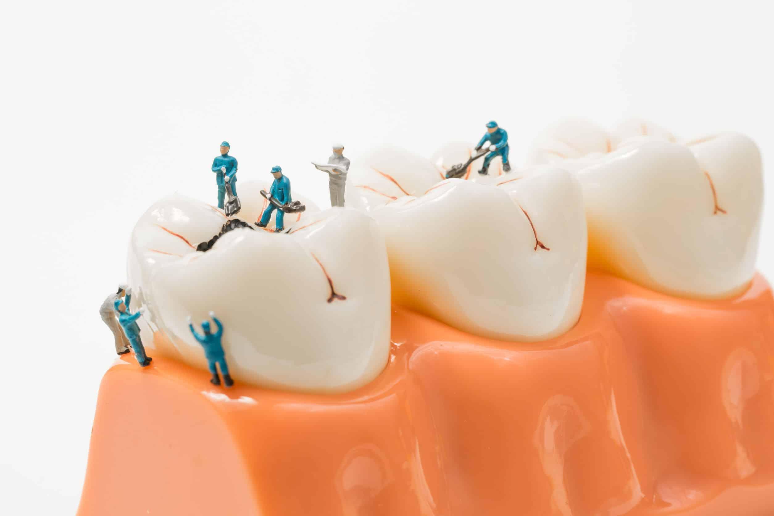 tipos de caries dental