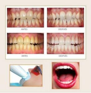 antes y después del blanqueamiento dental