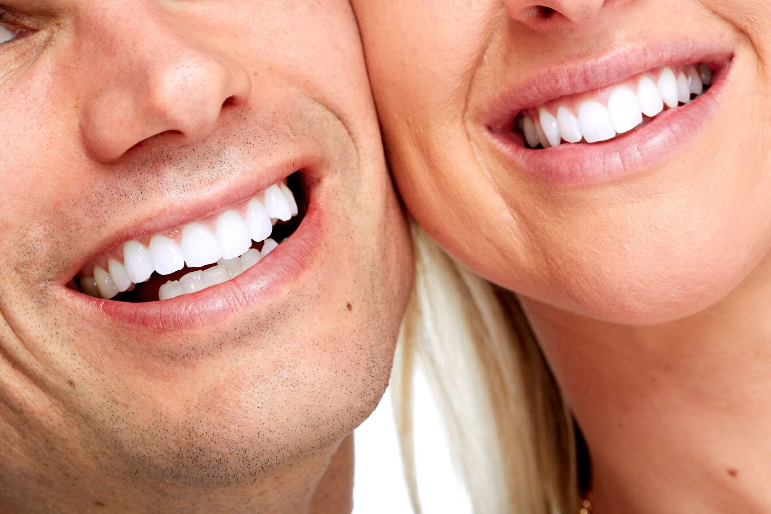 el blanqueamiento dental es sustituto de la limpieza