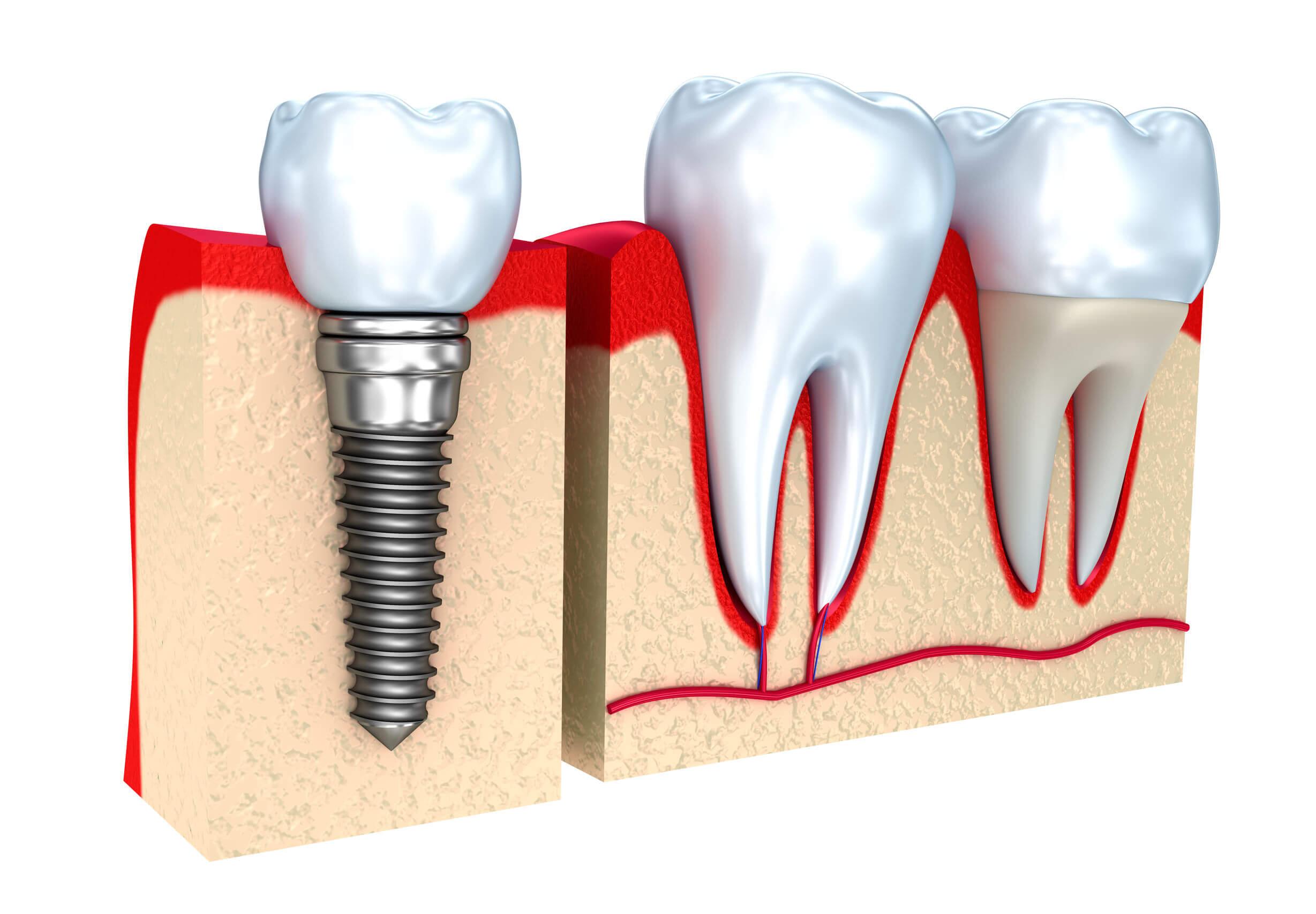 cómo se hace un implante dental