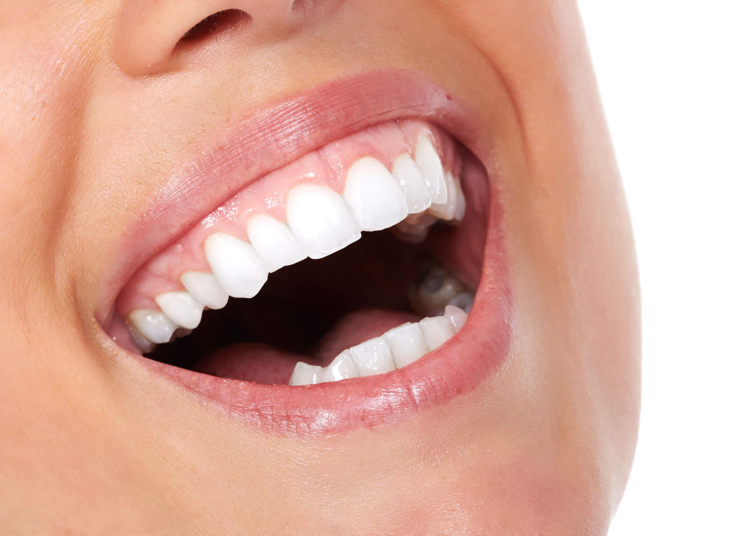 como tener los dientes blancos