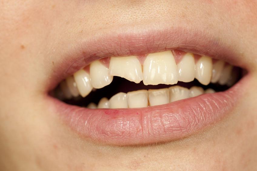fractura dentaria