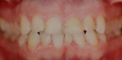 Ortodoncia blanqueamiento carillas Antes