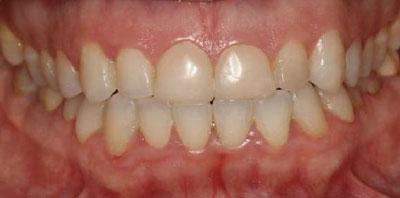 Ortodoncia blanqueamiento carillas Después