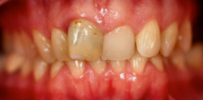 Ortodoncia Implante Antes - Clínica Dental Miguel Ángel García