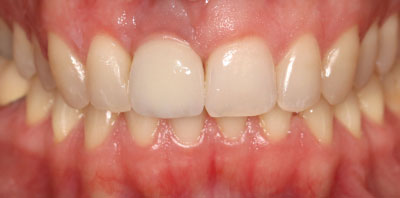Ortodoncia + Implante Después - Clínica Dental Miguel Ángel García