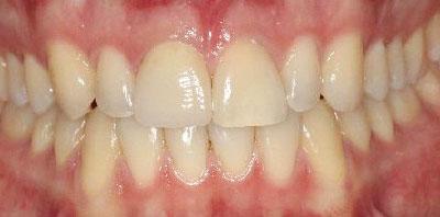 Ortodoncia + Corona cerámica Después - Clínica Dental Miguel Ángel García