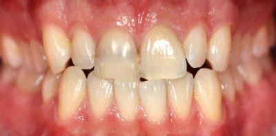 Ortodoncia corona cerámica Antes -Clínica Dental Miguel Ángel García