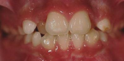 Ortodoncia gingivectomia Antes